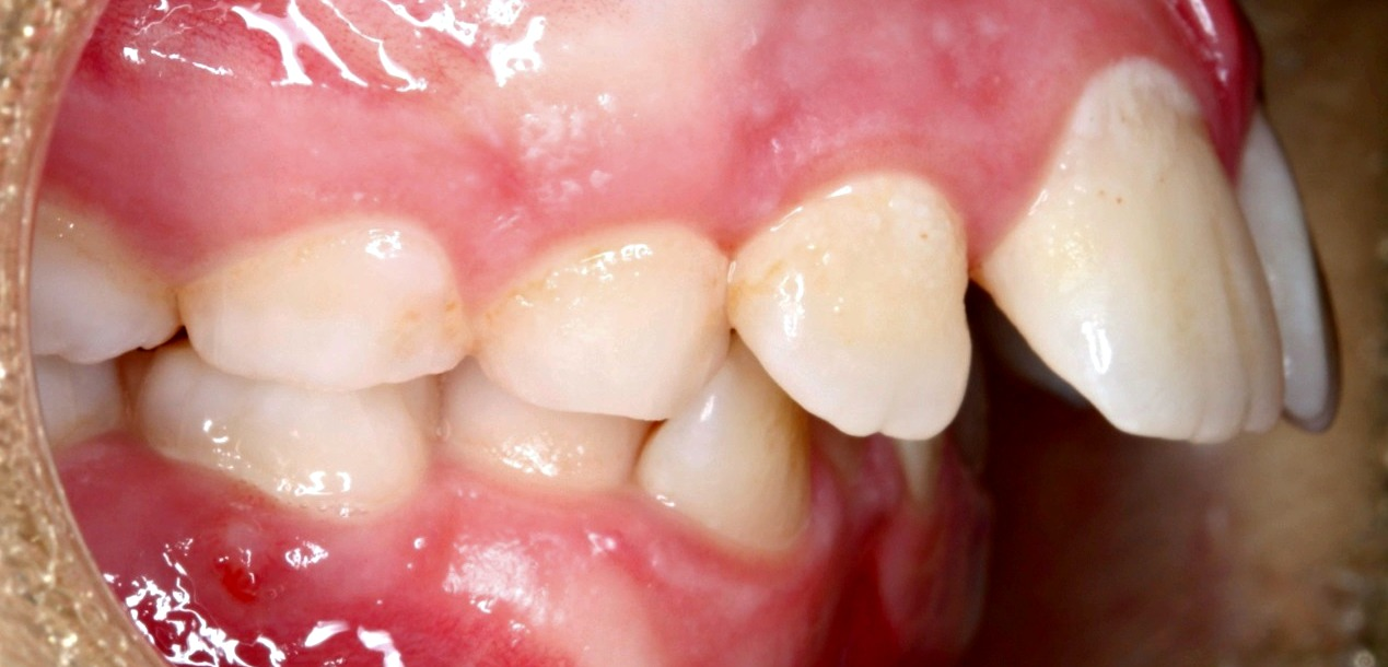 Luxury Picture Of Teeth Pictures - Anatomy And Physiology Biology ...